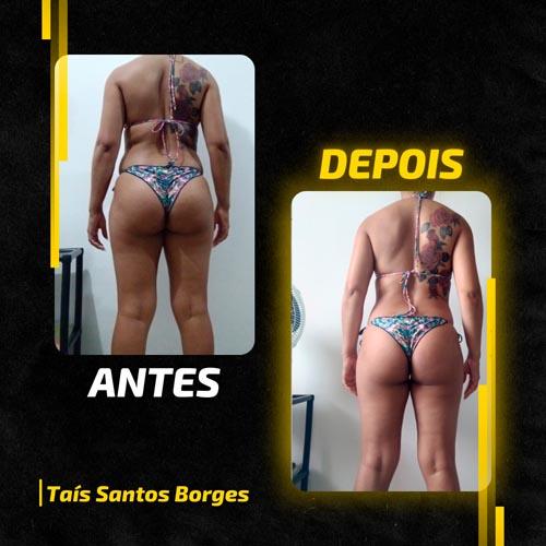 Antes e Depois - Amanda